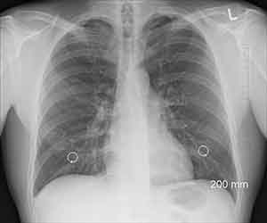 Silicosis Diagnosis from the X-Ray of a Glass Factory Worker